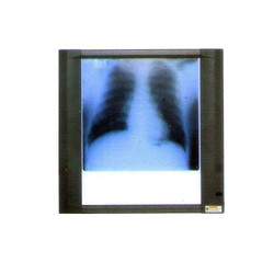 84-0101 X Ray View Single Screen