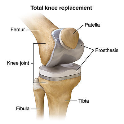 When Does A Rotator Cuff Tear Need Surgery