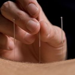 Acupuncture Body Needle