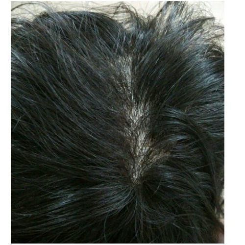 Mens Hair Patches - Front Lace Silk Base Mens Wig Wholesaler from Delhi