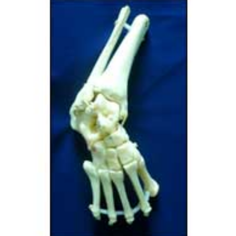 Club Foot Model Articulated Club Foot Model Manufacturer From Navsari