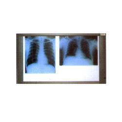 84-0102 X Ray View Two Screen