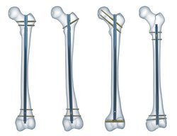 Femur Nailing System, Reamed. Low Distal Holes