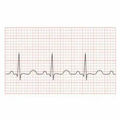 ECG Chart Paper
