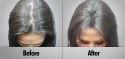 Laser Hair Regrowthing Treatment