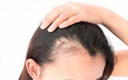PRP for Hair Fall & Facial Rejuvenation