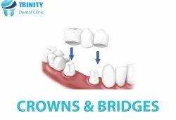 Crowns And Bridges Services