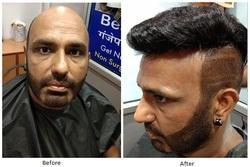 Non Surgical Hair Replacement- Beauty Plus