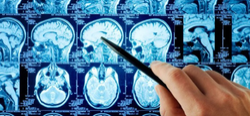 Neuro Surgery Treatment Services