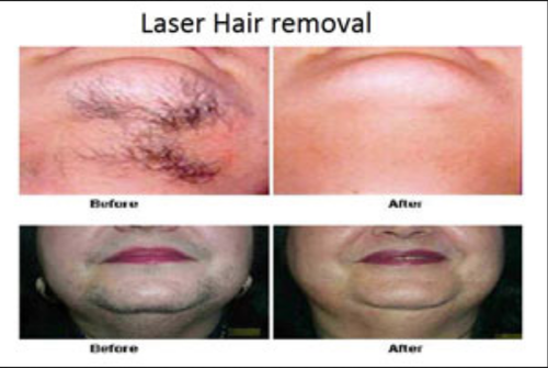 Laser Hair Removal, Laser Hair Removal Services - Dr  Nanda