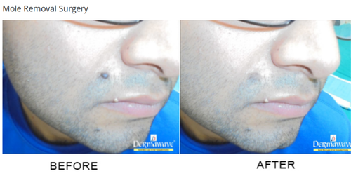 Mole Removal Surgery Service in Grand Trunk Rd,, Panipat