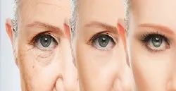 Anti Aging Treatments In Chennai