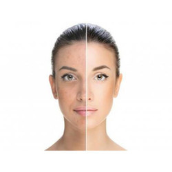 Cosmelan Peel for Skin Tightening Treatment