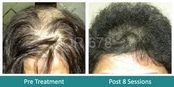 Hair Growth QR678 Treatment For Post Chemotherapy Patient