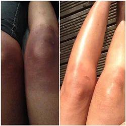 chemical peels treatment - Cosmelan Depigmentation Peel ...