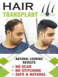 Hair Transplant Courses Cosderma Aesthetic Institute
