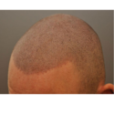 Male & Female Scalp Micropigmentation