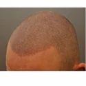 Male & Female Scalp Micropigmentation