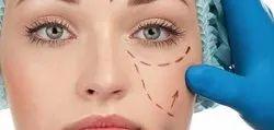 Eyelid Surgery Cosmetic Treatment
