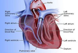 Heart Diseases Homeopathic Treatment