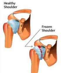 Frozen Shoulder Service