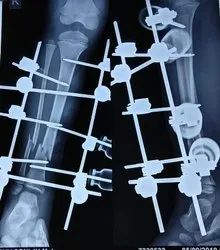Orthopedic Surgery Fracture Treatment