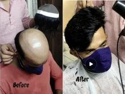 45 Minute Unisex Non Surgical Hair Replacement