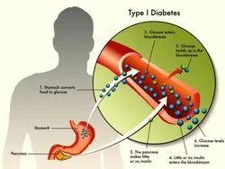 Natural Medicine And Yoga Diabetes Mallitus