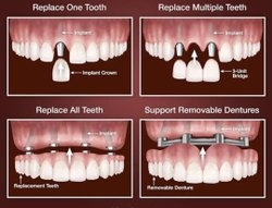 Implant Dentistry Treatment Service, For Dental Implants