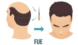Skin Treatment Service