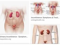 Urinary Incontinence Therapy