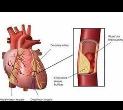 Ayurvedic Unisex Best Heart Blockage Treatment In The World