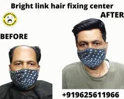 Hair Bonding Treatments, Faridabad, 18 To 80
