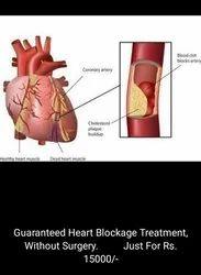 Heart Blockage Treatment Guaranteed