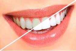 Teeth-Whitening Service