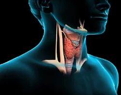 Thyroid Treatment Service