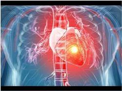 Coronary Angiography in Mumbai, कोरोनरी