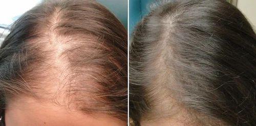Mesotherapy For Hair Growth in Vijayawada, Gurunanak Nagara by Magic Skin, Hair And Laser Clinic | ID: 18972652355