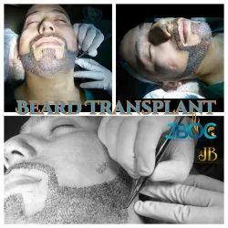Hair Transplant Clinic  Beard hair Transplant