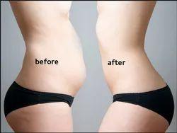 Fat Loss Liposuction