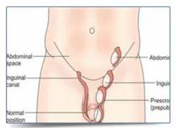 Follicular Monitoring Treatment