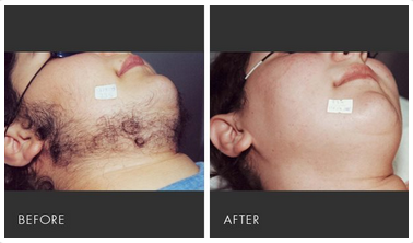 Ipl Laser Hair Removal Treatment ल जर ब ल क