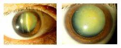 Cataract Surgery
