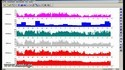 CONTEC TLC 6000 Holter Monitor