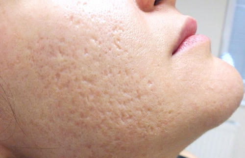"Image result for open pores"",nari"