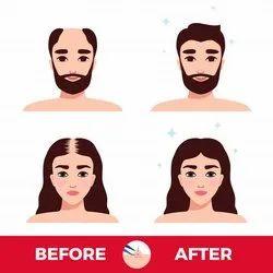 Unisex Hair Transplant
