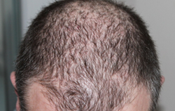 Hair Loss Treatments Service