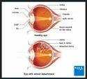 Retinal Detachment Treatment Service