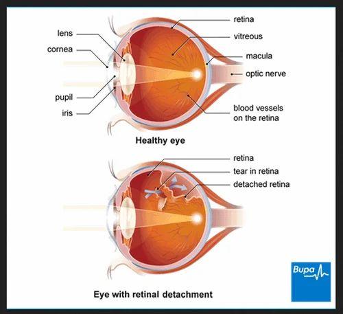 Resultado de imagen de retina detachment