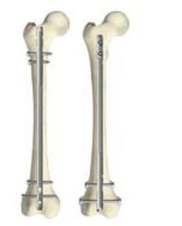 T2 Femoral Nailing System